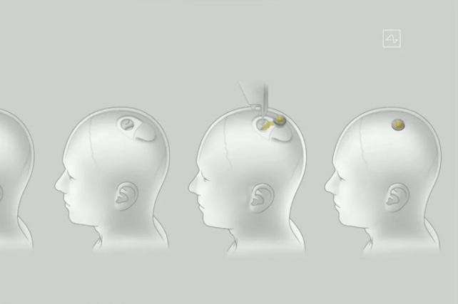 What the Brain Chips Would Look Like When Being Installed into a Human