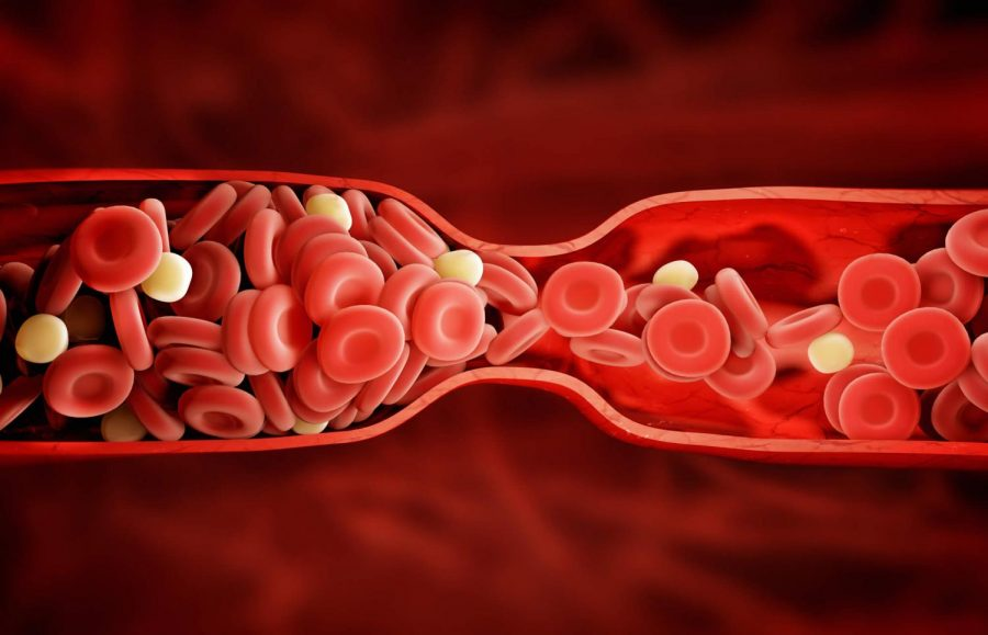 Diagram of a blood clot in the body.